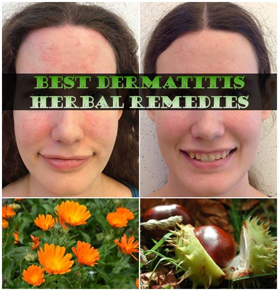 Best-Dermatitis-Herbal-Remedies