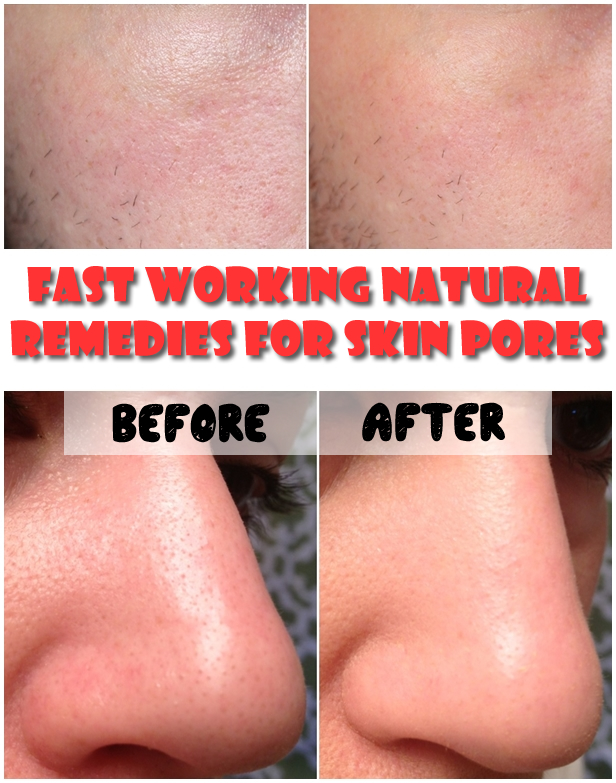 Fast-Working-Natural-Remedies-For-Skin-Pores-