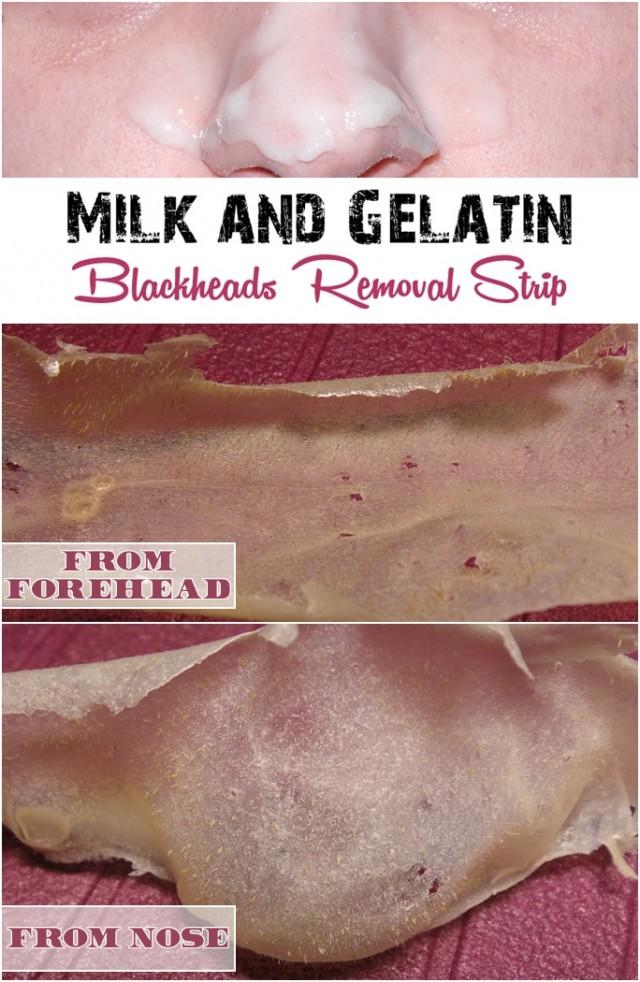 Gelatin-blackheads-removal2-640x982