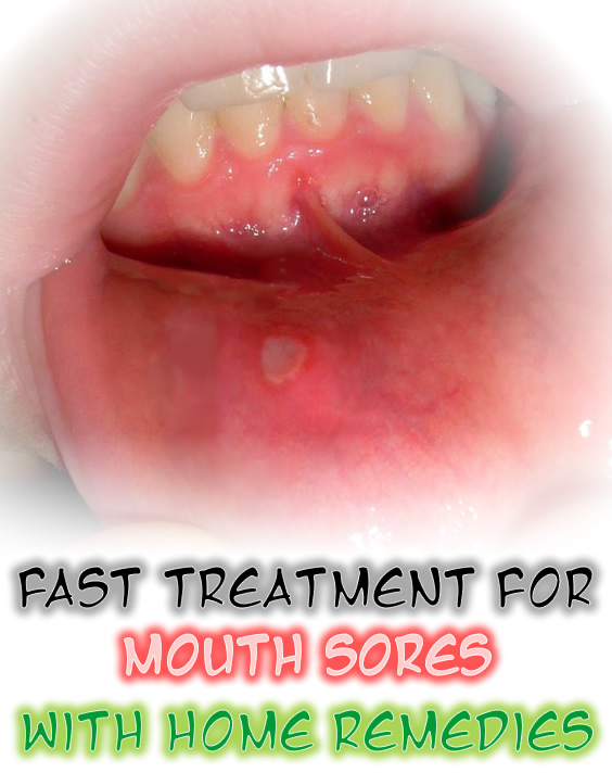 Mouth Sores Natural Home Remedies Shealthplus