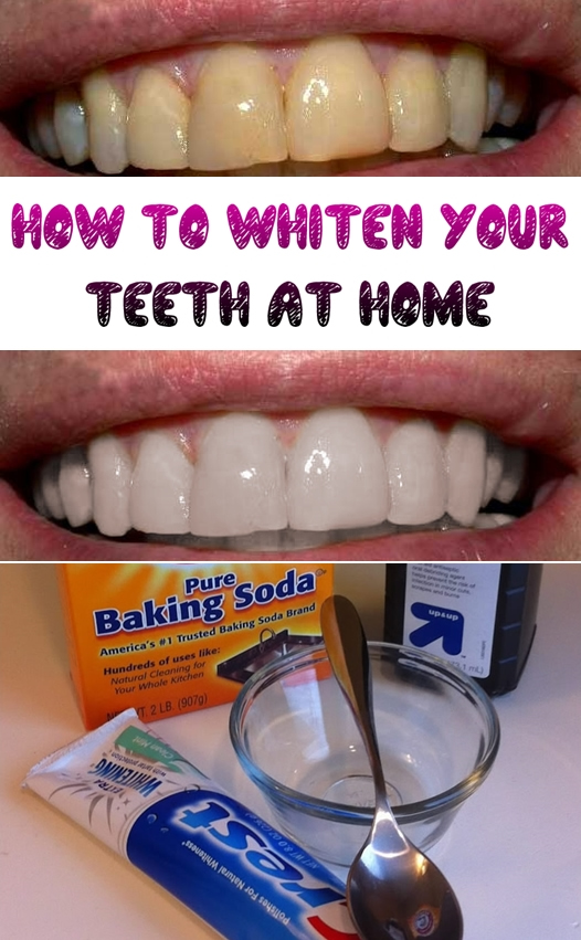 Whiten-Teeth-Home-2